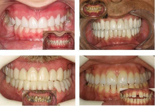 Before And After Dr Joseph Spina Iii D M D