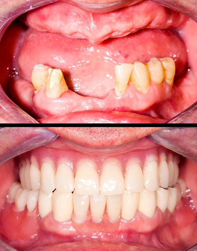 Before and After - Implant