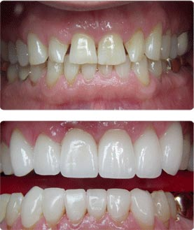 Before and After - Veneer