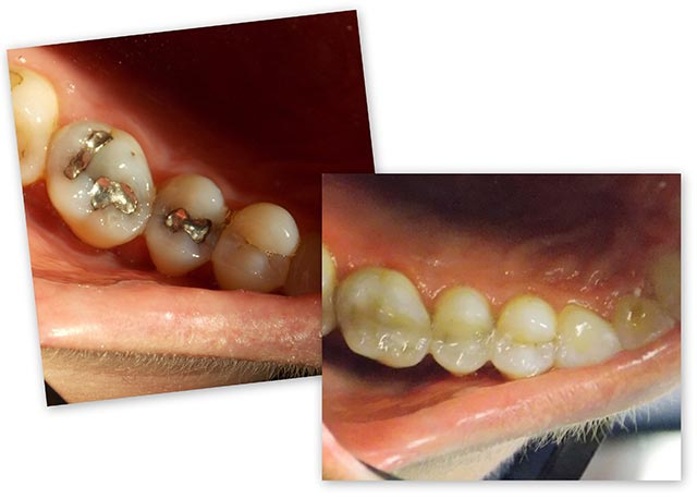 Before and After - White Fillings