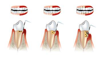 Preventative Dental Care - Cleanings