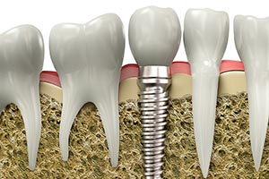 Dental Implants, Dr. Spina DMD, FICOI, Wayne, PA Office